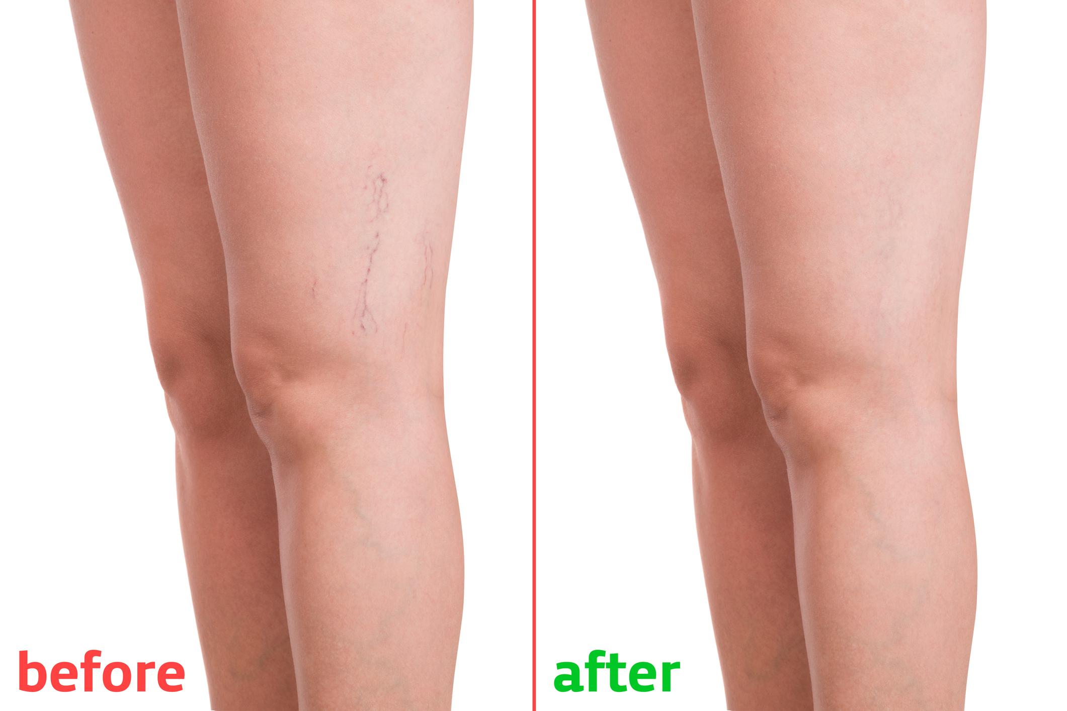 Gambe Slim -Szép lábak gyógynövénykivonat 500ml