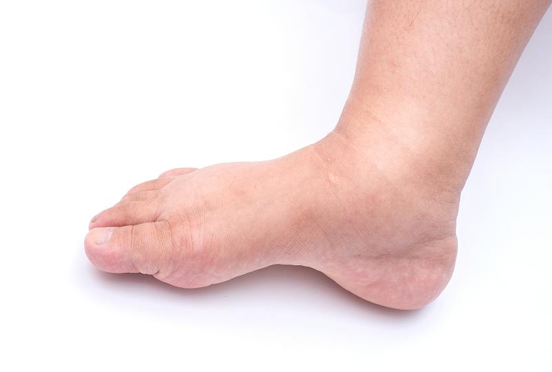 zúzódások a lábakon visszér kezeléssel