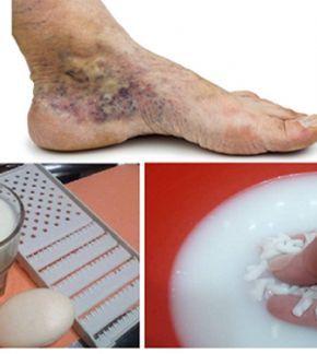 hogy működik a varikózis a lábán
