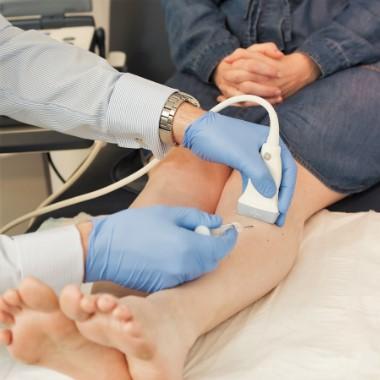visszér kezelése szkleroterápiával
