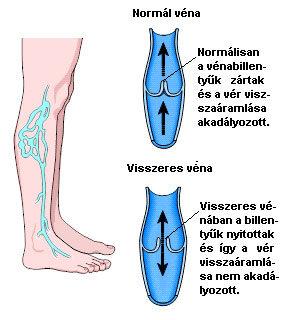 visszérbetegség szövődménye műtét után visszérfoltok a lábon
