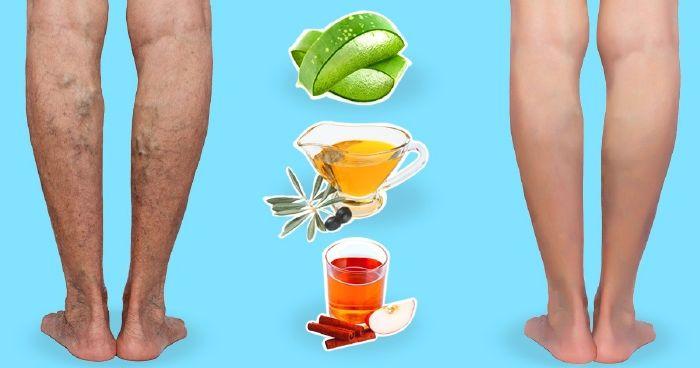 visszér a lábakon hatékony receptek