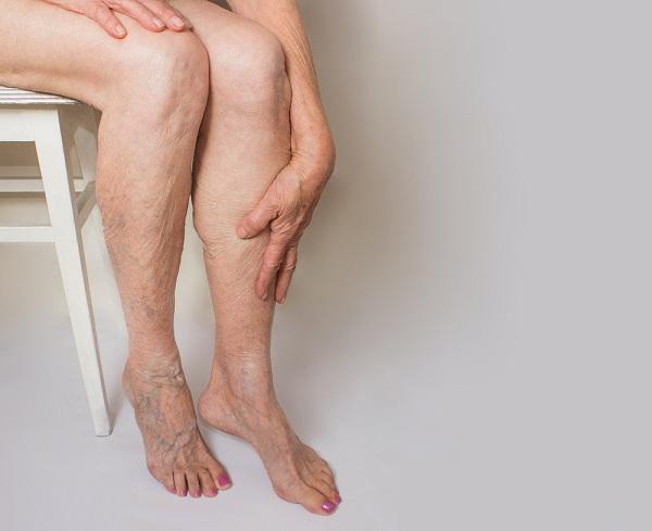 a visszerek egyre rosszabbak visszér tünetek a kezeken