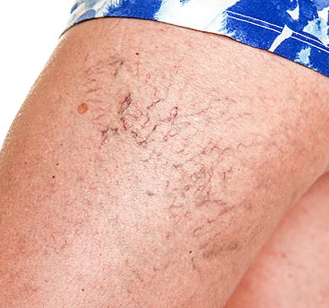 a varikózis megjelenésének oka a lábon
