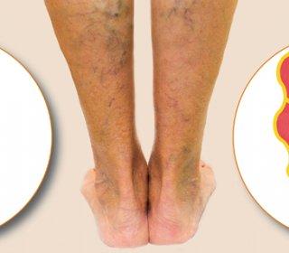 Visszérrel mit ér a női láb? – Nőileg