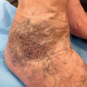 a lábak betegségei visszér