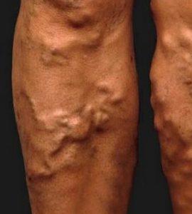 Varikozus medence erek műtéti kezelése ,első fokú varikozos betegség