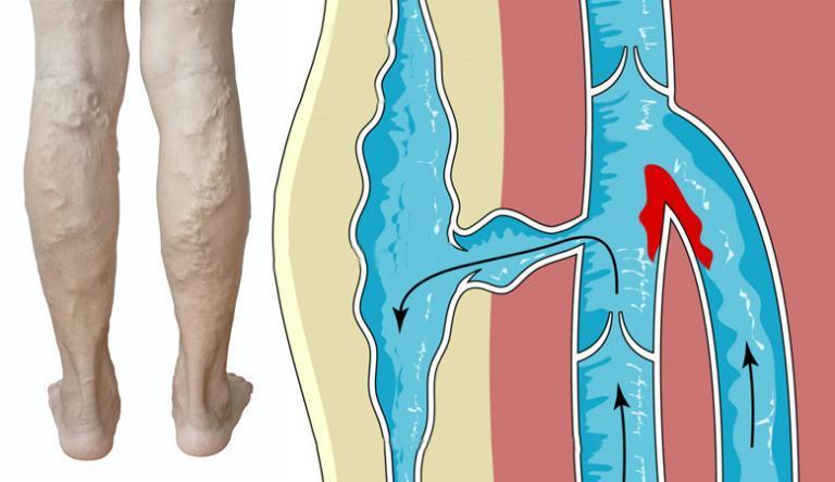 visszeres lábakhoz népi gyógymódokkal térdig érő visszerek, hogyan kell viselni