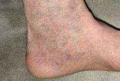 a lábon lévő visszéreket kezeljük hogyan lehet eltávolítani a vénákat és a visszerek a lábakon