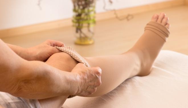 harisnya a lábakon a visszér ellen visszér kezelésére szolgáló eszközök