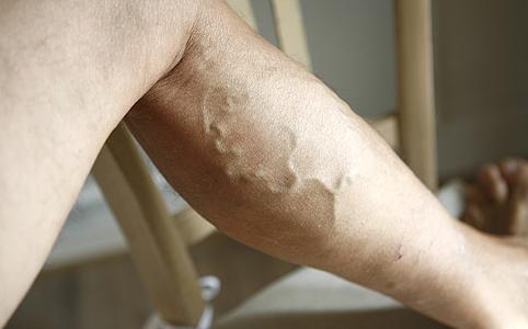 gyógymódot készítsen a visszér ellen visszér a lábakon kezelés tabletták