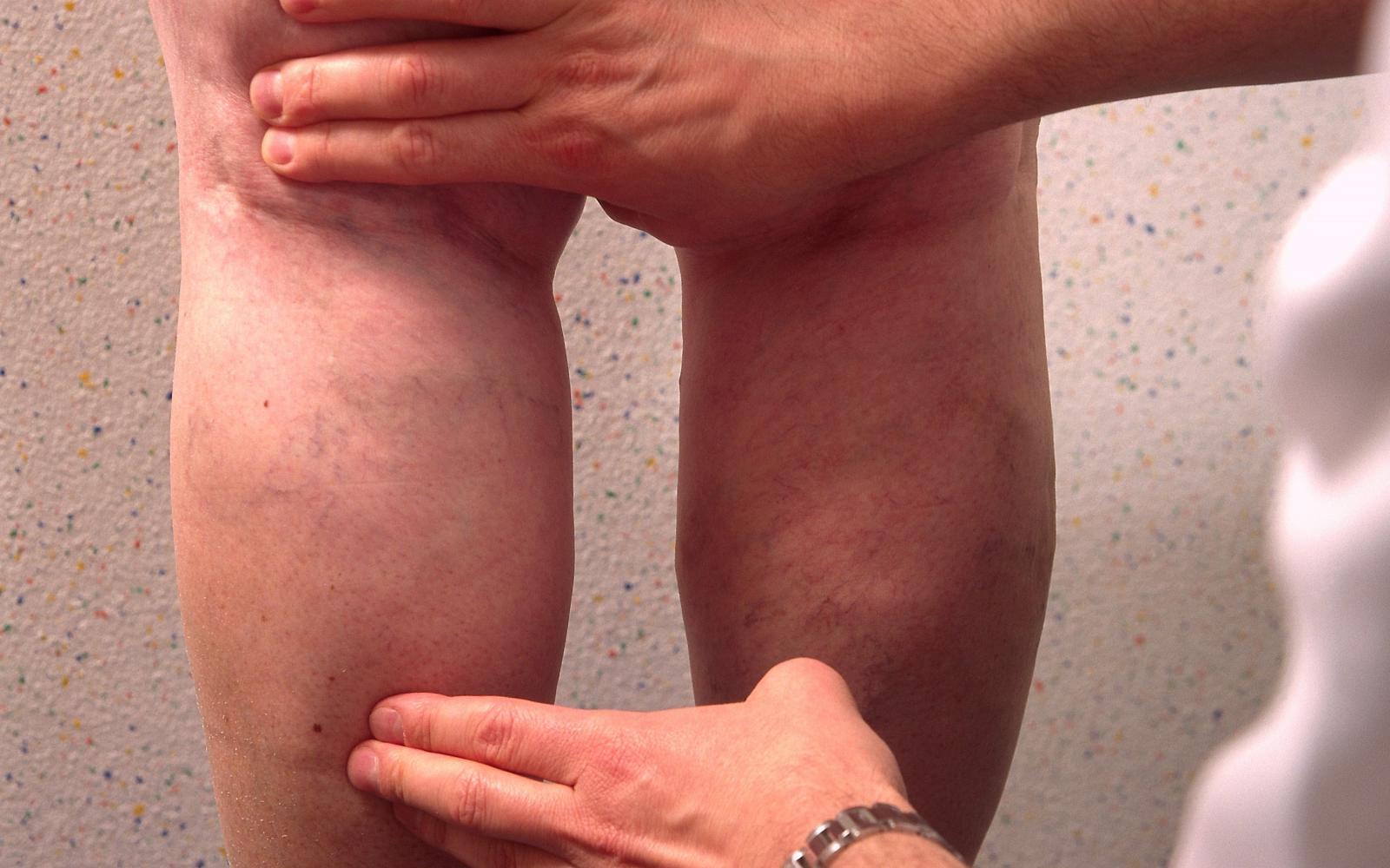 Visszér kezelési standard, Lábak duzzadtak a visszér, mint kezelni