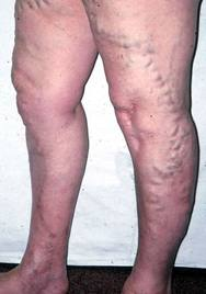 visszér aromaterápiás kezelése az alsó végtagok bőrének viszketése visszeres