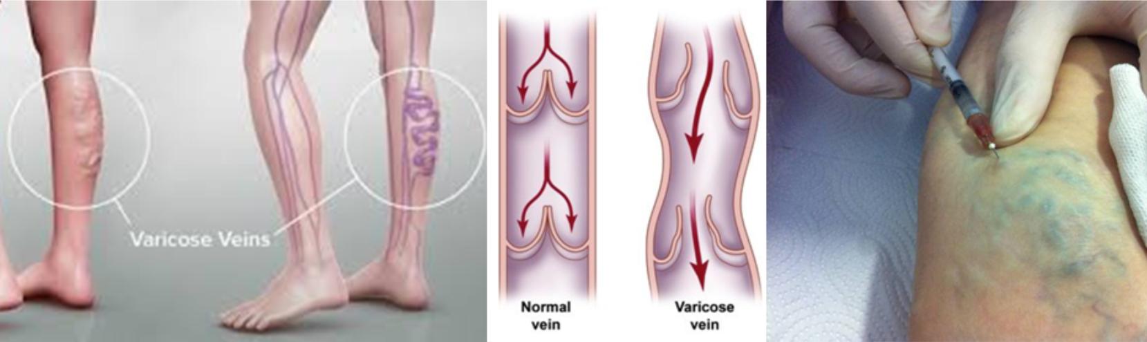 lábfájás a visszerek miatt hasznos gyakorlatok a visszeres lábak számára