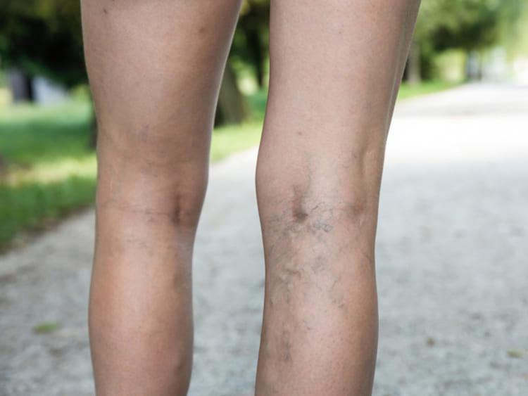 gyógyszer, mint a lábakon lévő visszér kezelésére