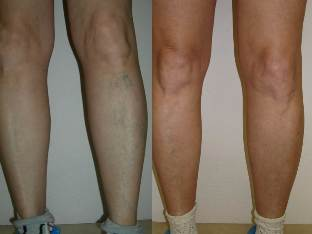 Annál jobb a visszeres lábakat kezelni, A trombózisról