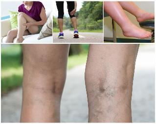 visszér a lábán tünetek fotó áthaladt visszerek a szülés után
