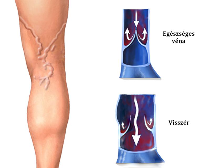 visszérgyulladás a láb kenőcsén műtét árai visszér