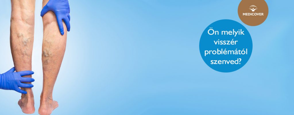 Végtagi erek color Doppler ultrahang vizsgálata | Cleopatra Medical Center