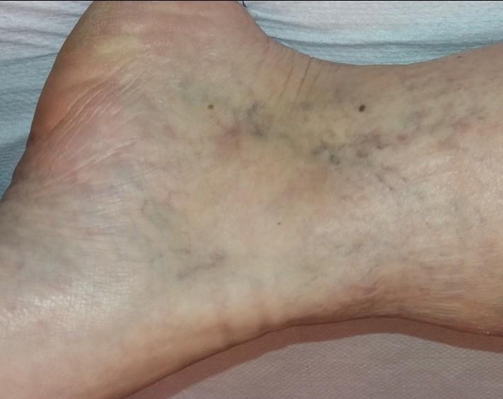 visszér és a striák a lábakon