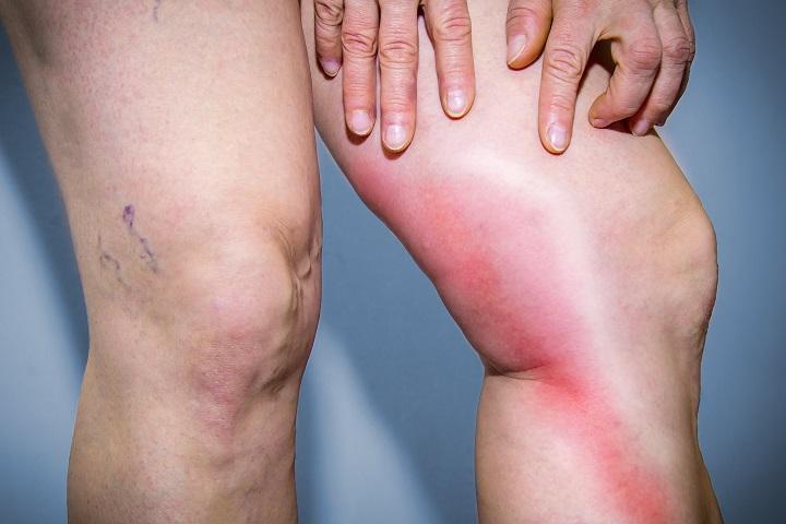 a lábakon lévő visszér enyhíti a fájdalmat