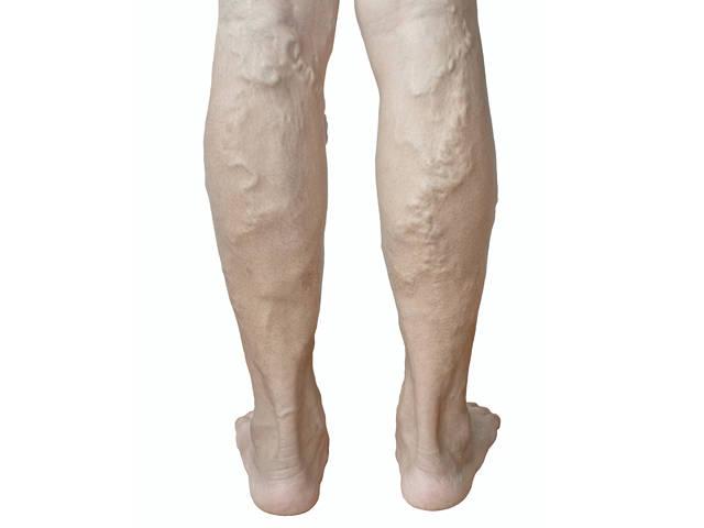 zsibbadhatnak-e a lábak a visszérrel kötések műtét után visszér