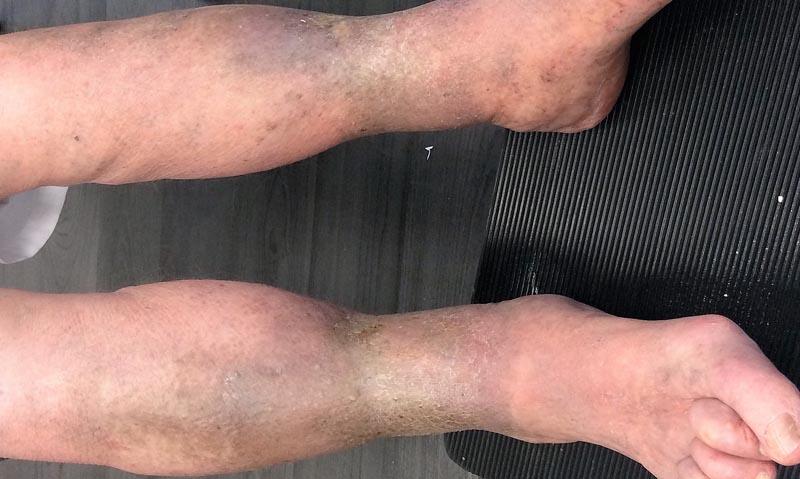 barna foltok a lábakon visszérrel