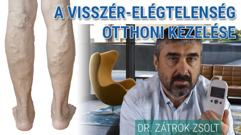 Varikozusok lézeres kezelése. mellékhatások áttekintés áttekintése lábfájdalom betegek