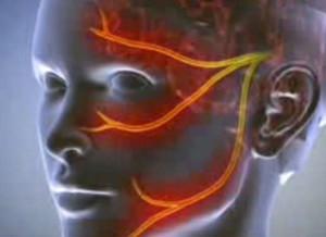 Tejcsíra - méregcsípő gyógyító - Steatosis