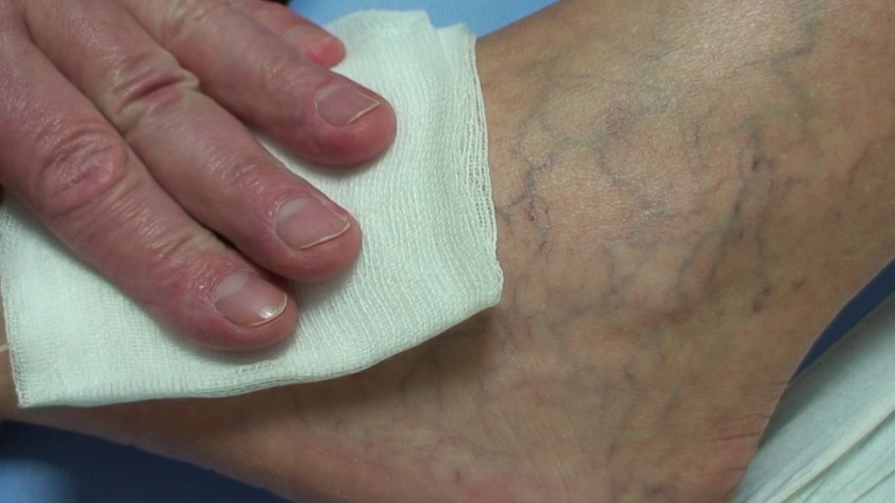 a kismedence belső visszérfotója álomkönyv, hogy a varikózis a lábakon látható legyen