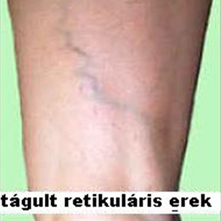 Lézeres visszérműtét (EVLA)