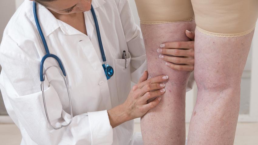visszér kezelése fizioterápiával