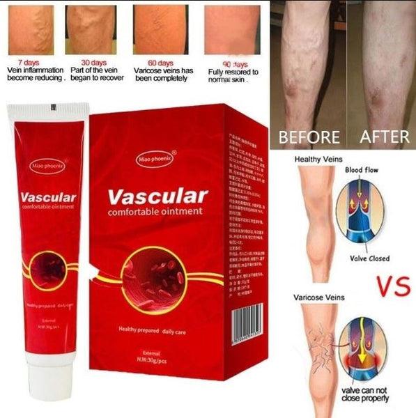 a varikózis eltávolítása a lábakon lézerrel
