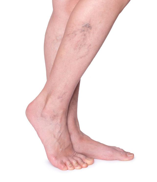 a visszerek egyre rosszabbak visszér a lábakon tünetek és kezelés