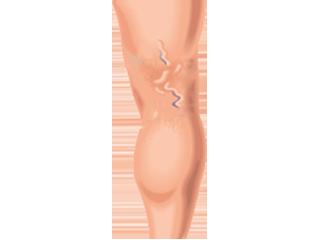 visszér típusok műtéti kezelés