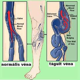mi kezeli a lábak varikózisát kámfor és visszér