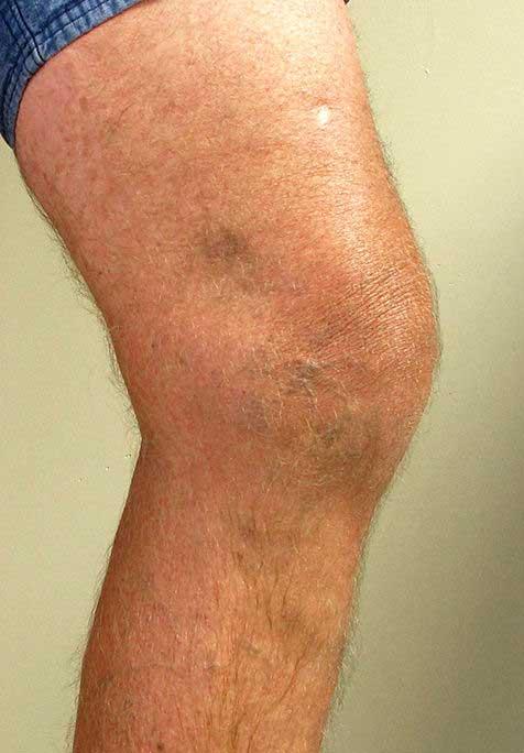 fájdalom a visszér lábain lehetséges-e arginint visszérrel szedni
