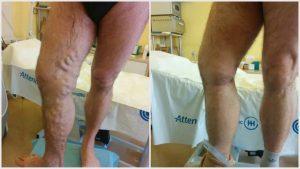 Visszérműtét után sem kell felhagynia az edzéssel Torna a visszér műtét után