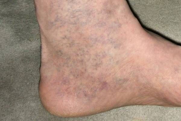kék a lábakon visszér a varikózis tünetei a lábán