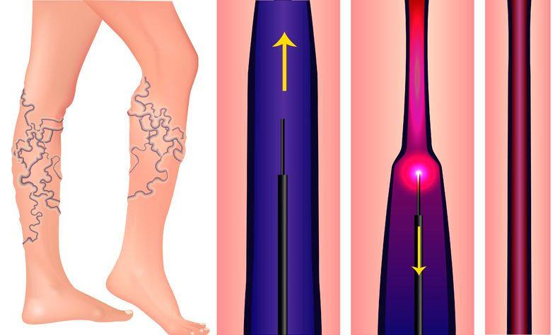 visszér lézeres kezelés lábak