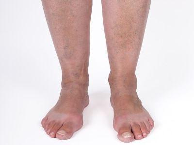 trombózis visszér tünetek)