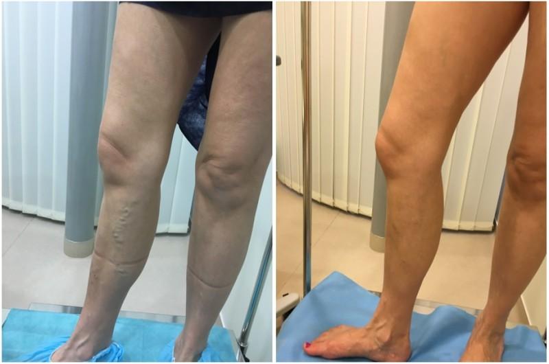 Visszérműtét előtt és után – galéria