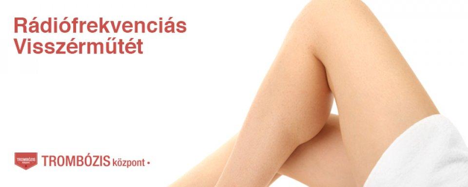 visszér lézeres kezelés árak a lábak tisztítása. visszérből