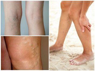 a visszér bőr megnyilvánulása lézeres visszérkezelés