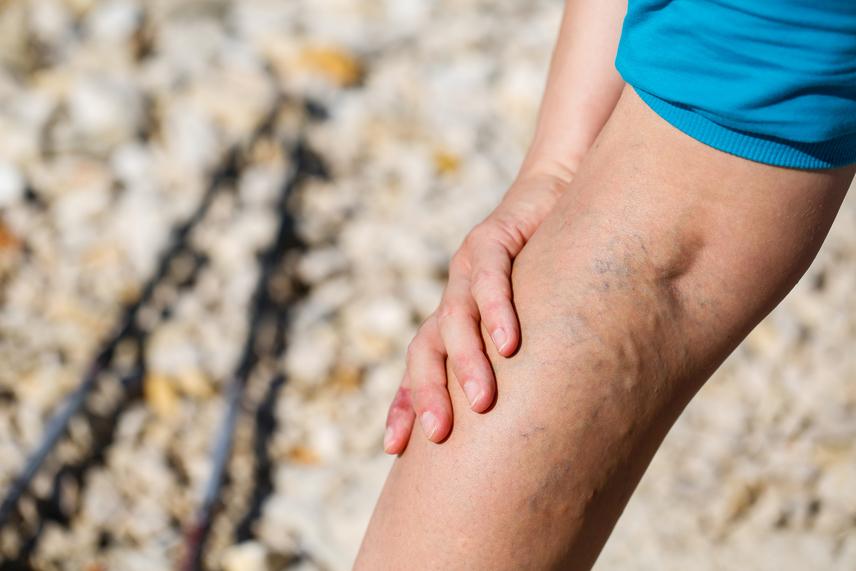 A visszérfájdalom megszüntetése - Egészség | Femina