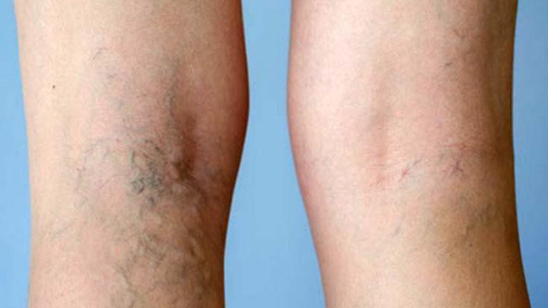 milyen műveleteket végeznek a lábak visszér