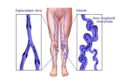 fotó a lábakon lévő visszerek szakaszairól