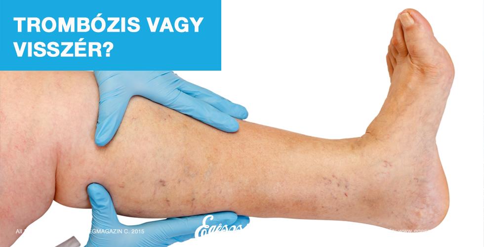hogyan lehet gyógyítani a visszér visszér a lábak belső a visszerek járás közben fájnak