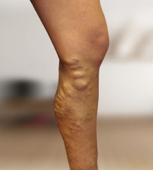 feszítő lábszárvédők visszerek esetén