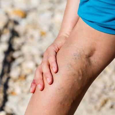 visszér a lábakon kezelés terhesség alatt